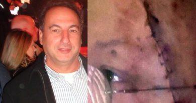 Escándalo: Jefe del PRO correntino le partió una botella en la cabeza a un dirigente de la UCR