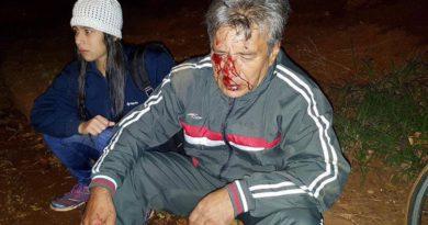 Por el pésimo estado de las calles en Posadas ciclista sufre un accidente