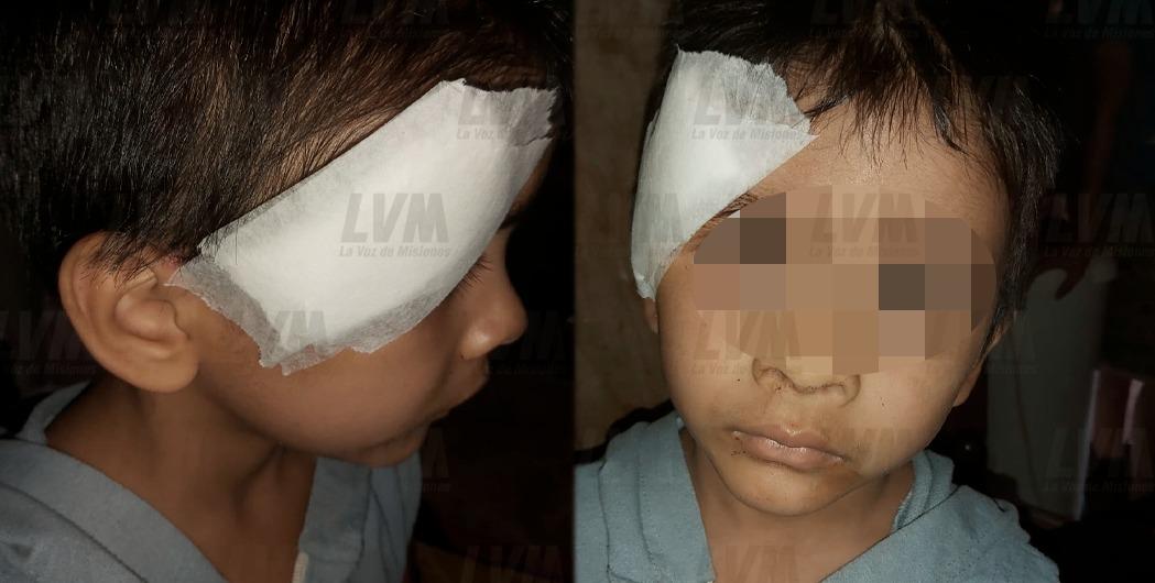 """Denunció a su vecina por romperle un vaso en la cabeza a su hijo: """"Casi lo mata"""""""