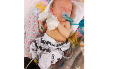 Su bebé no puede alimentarse y necesita traslado y operación urgentes