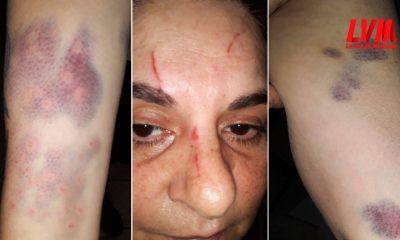Obereña denunció que su mejor amiga la atacó a patadas y le robó $20.000